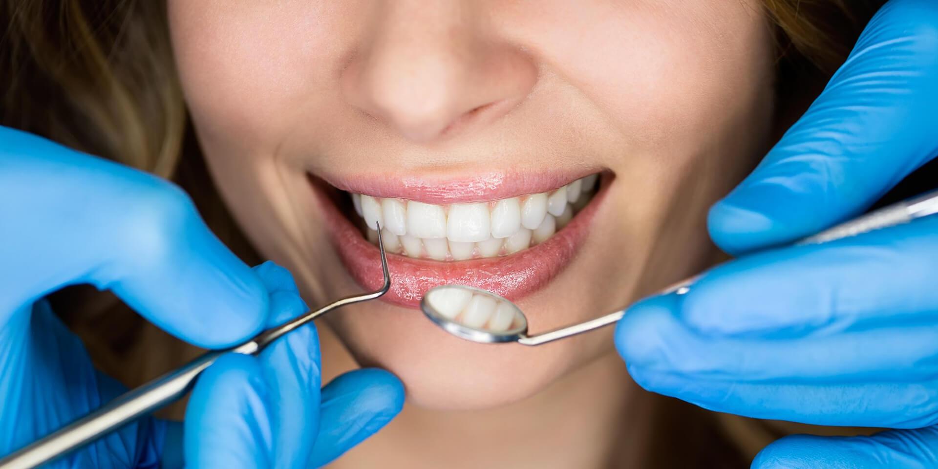 Diş Estetiği Nedir ?   Blog