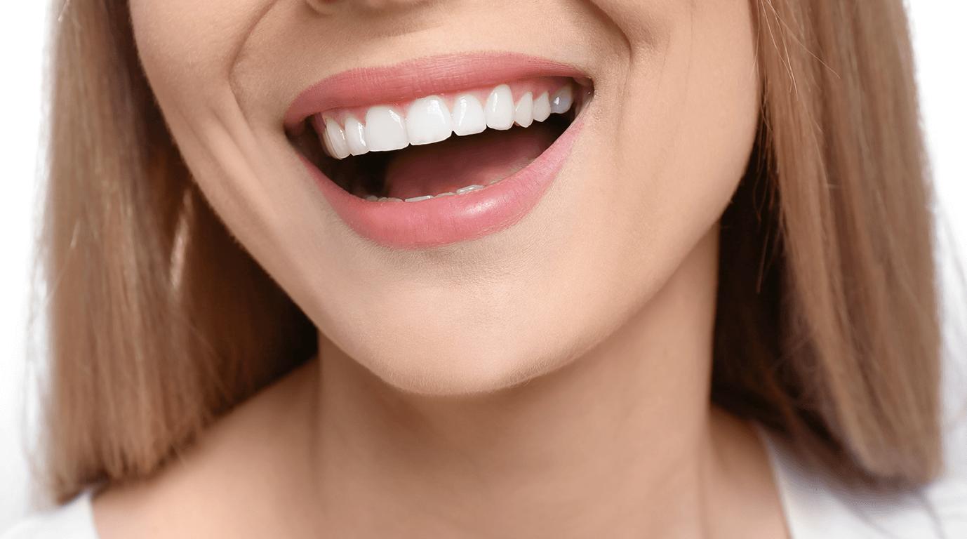 Hollywood Gülüşü / Hollywood Smile Nedir? | Blog